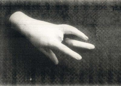 Main: plâtre, cassée, fracture, rupture, fragment, photo plasticienne.